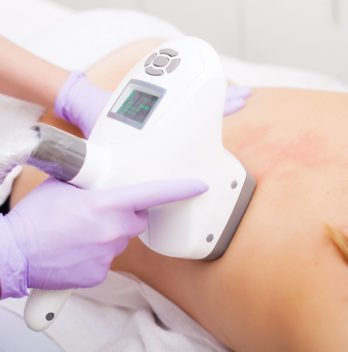 Is lipomassage effective for slimming?