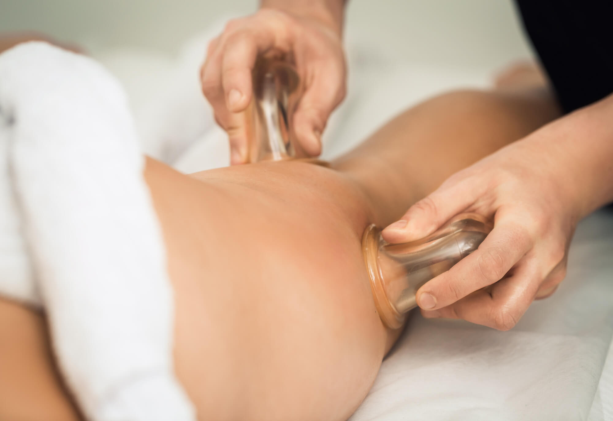 Does cupping for cellulite really work ?
