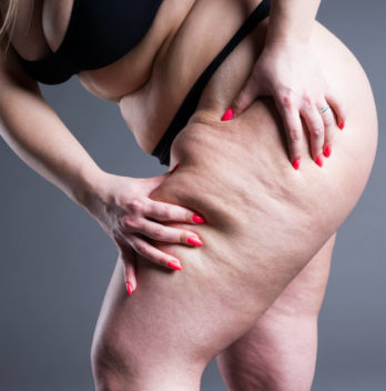 get rid of thigh fat